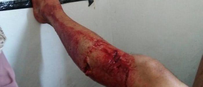 Verletztes Bein nach Biss eines Komodowarans